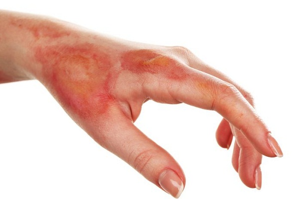 5 Methods Helpful In Burn Of Body Parts