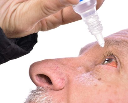 #Step by step instructions to Get Rid Of Pink Eye (Conjunctivitis)#Health