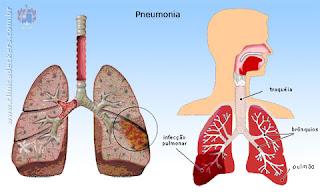Lengkap Asuhan Keperawatan Pneumonia Haris715