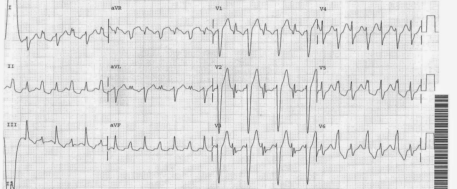 Dr Smith S Ecg Blog An Unusual Tachycardia