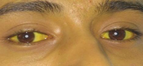 Apakah Benar Mata Menguning Merupakan Gejala Dari Penyakit Liver , Cek Disini