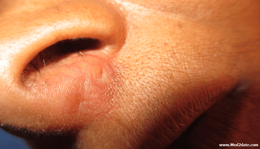 nasal-septal-abscess