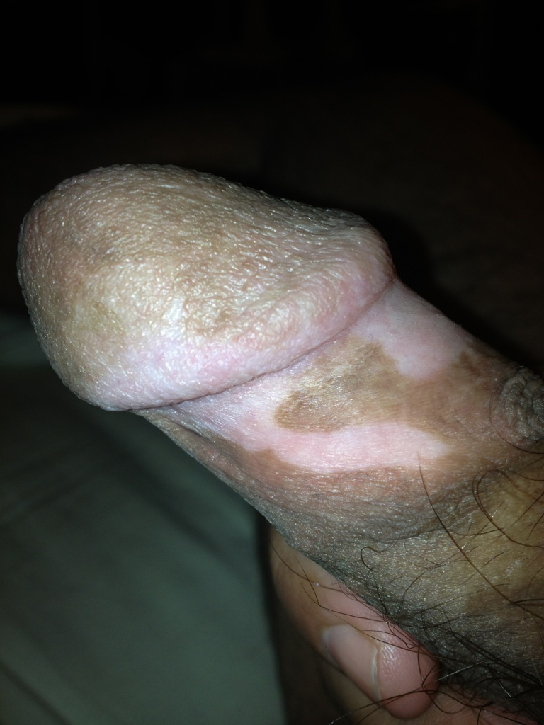 Vitiligo Penis 68