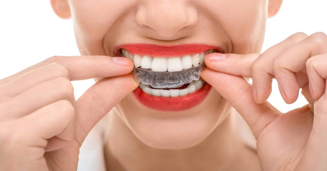 Braces, Retainers, Oral Health, Teeth, Dentist, Lifestyle, Tips & Tricks, beauty