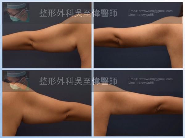 手臂抽脂+手臂拉皮與切皮; (左)術前,(右)術後*