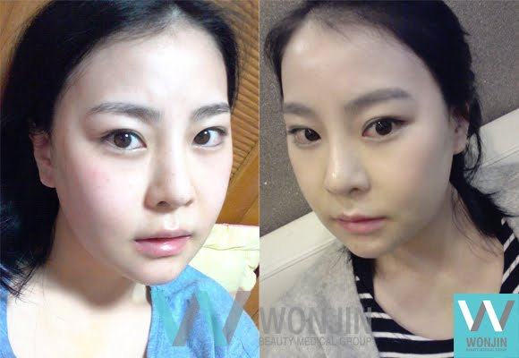짱이뻐! - Not Round Anymore but Really Slim, The Best Korean Face Contouring