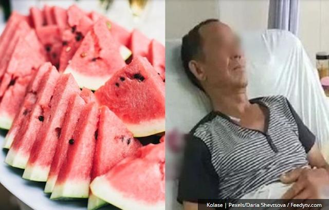 Usus Kakek ini Membusuk Setelah Makan Semangka yang Disimpan dalam Kulkas, Begini Penjelasan Dokter