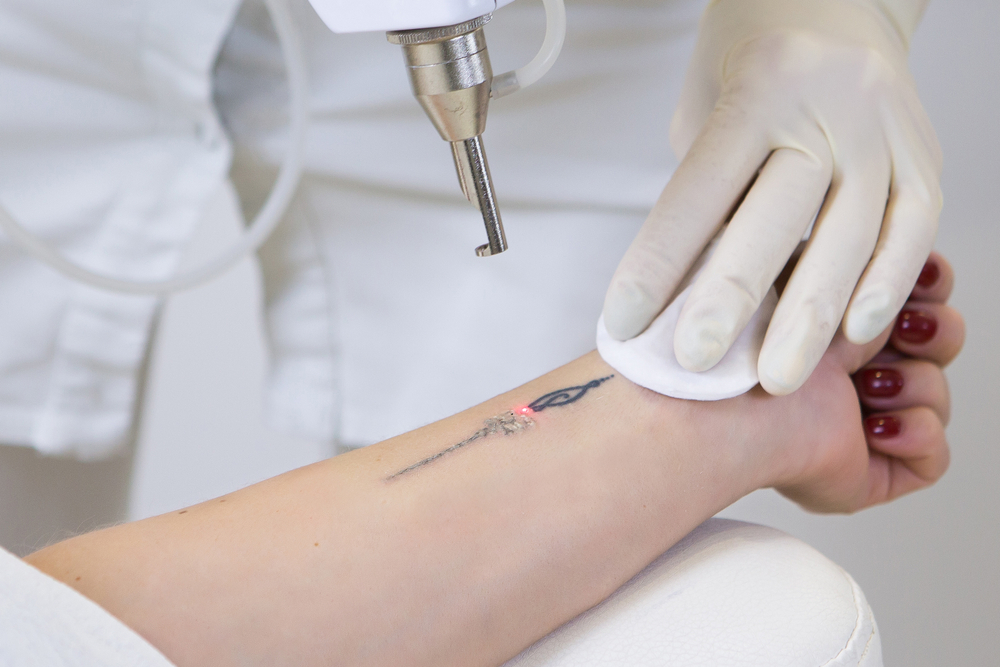 The Best Laser Tattoo Removal procedure is safe