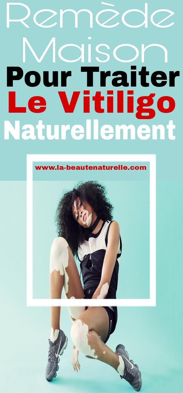 Remède maison pour traiter le vitiligo naturellement