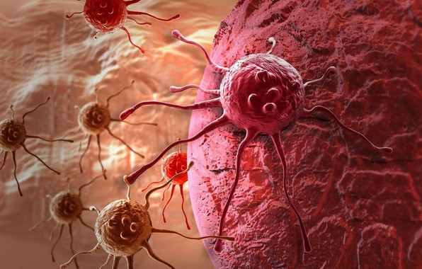 Mengatasi Kanker Dengan Nutrisi