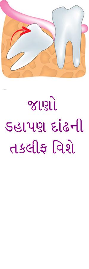 http://www.drkatarmal.com/2015/01/wisdom-tooth.html