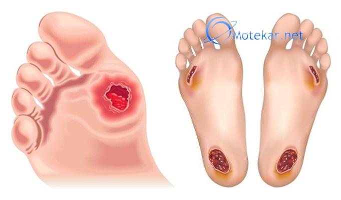 Гнойные раны как лечить при диабете типа