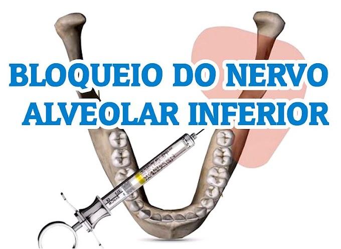 ANESTESIA DENTAL: Bloqueio do Nervo Alveolar Inferior - Dicas Adicionais Para Aumentar o seu Sucesso