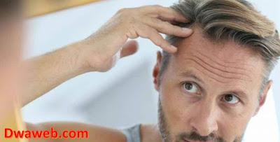 ما هو علاج مينوكسيديل Minoxidil؟ وما السر وراء شهرته الواسعة؟