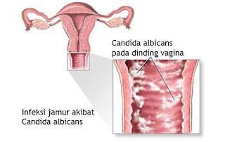 Manfaat daun sirih untuk vagina