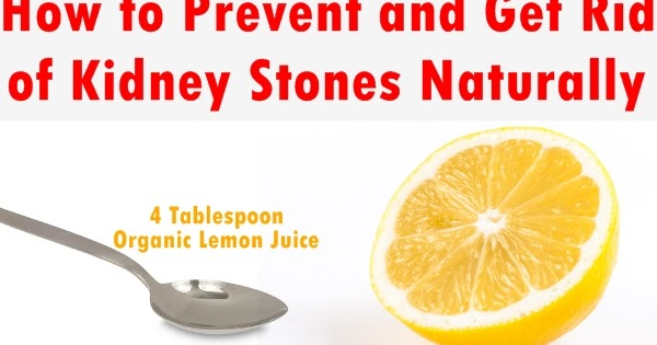Rid Kidney Stones Naturally