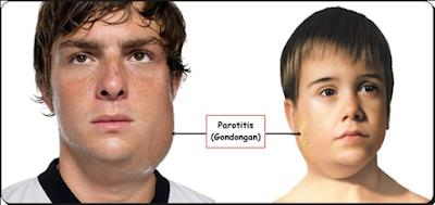 http://www.pusatmedik.org/2016/08/definisi-penyebab-dan-pengobatan-serta-gejala-klinis-penyakit-parotitis-epidemika-menurut-ilmu-kedokteran.html