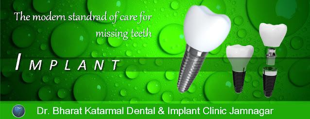 dental implant treatment at Jamnagar