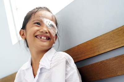 Post operative cataract child with happy face