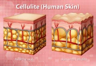 السيلوليت: كيفية التخلص من السيلوليت بـ أسهل الطرق بالمنزل