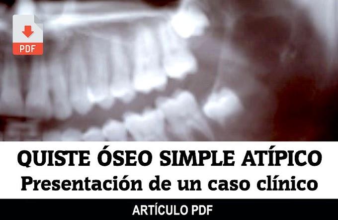 PDF: Quiste óseo simple atípico: Presentación de un caso clínico