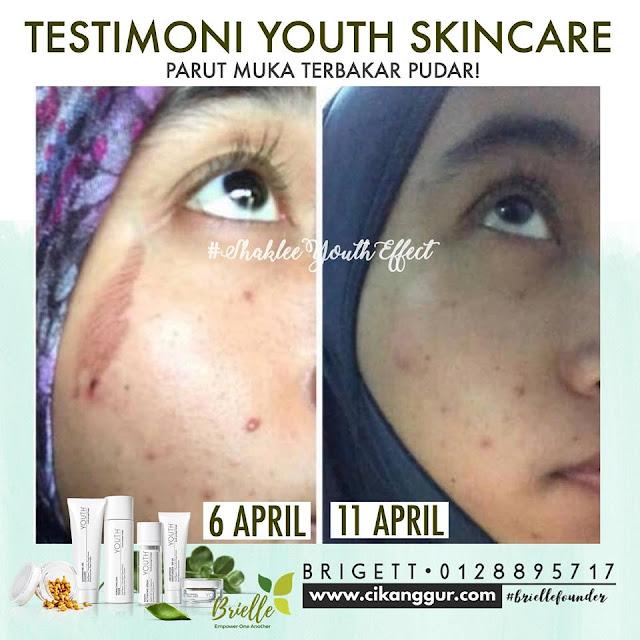 Parut Kulit Melecur Hilang Selepas 5 Hari Dengan Skincare Semulajadi YOUTH