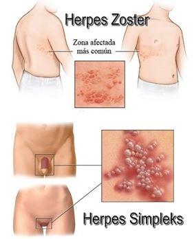 obat herpes kulit acyclovir salep | Obat Herpes De Nature Indonesia