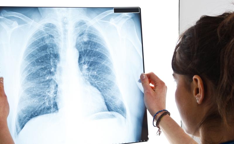 Akciğer kanserinde ölüm oranları giderek azalıyor
