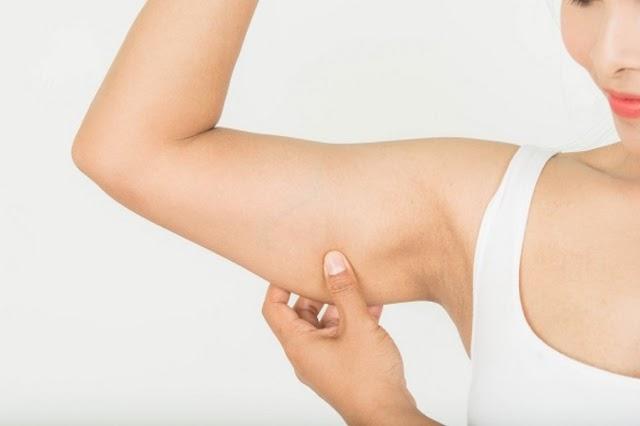 Fogyástól megereszkedett bőr: tippek megelőzésre, feszesítésre