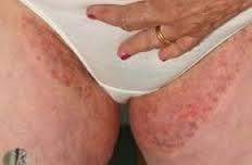 tips cara mengatasi gatal pada selangkangan dan bokong