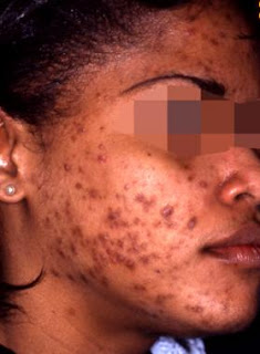 Acne vulgaris, pathophysiology, presentation and diagnosis