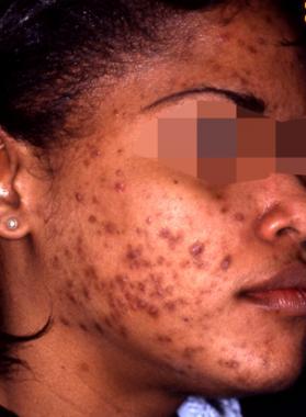 Acne vulgaris, pathophysiology, presentation and diagnosis