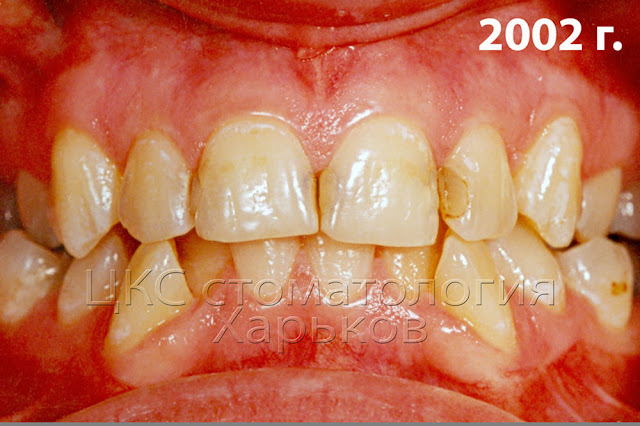 Неровные зубы и кариес