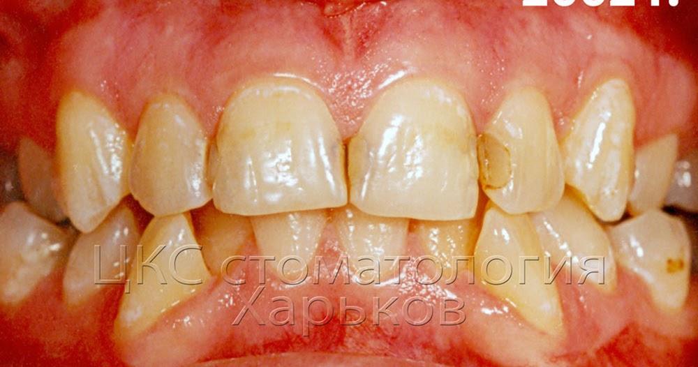 Реставрация передних зубов после исправления прикуса