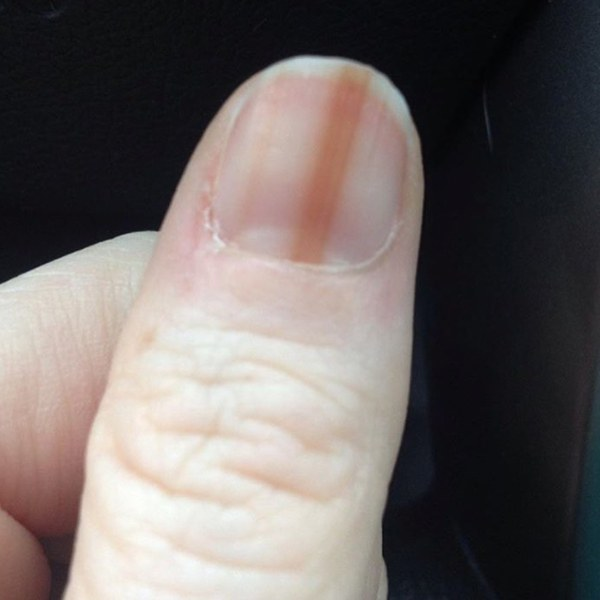 Your-Gel-Nails-Could-Give-You-Cancer-Not-Kidding