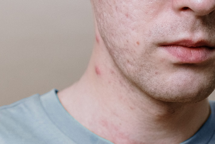 Five Acne Myths That Are Sabotaging Your Skin
