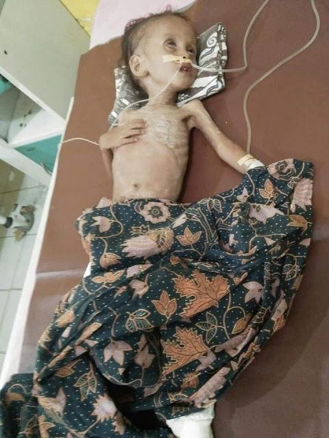 Fitri Fadilah bocah penderita gizi buruk sebelum meninggal dunia.