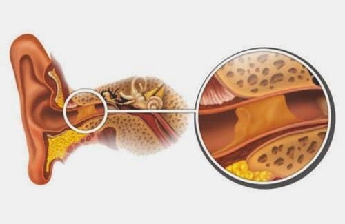 remedios caseros para destapar los oidos con cera