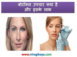 botox-injection-uses-side-effects-cost-treatment-information-in-hindi-language