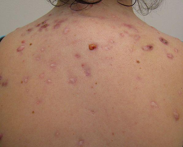 Nodular acne on the back