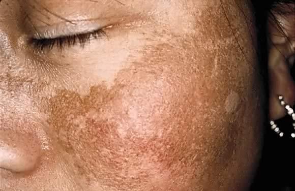 como eliminar manchas y paño dela cara