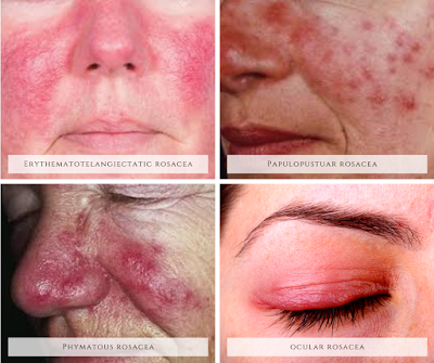 4_subtypes_of_rosacea