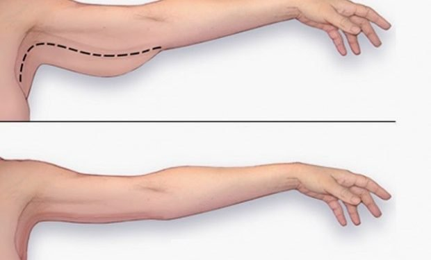 5 Exercises For Tonic  Arms