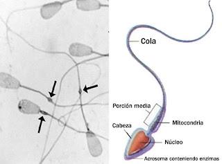 Espermatozoide normal