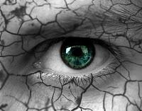 جفاف العين - الأسباب والعلاج
