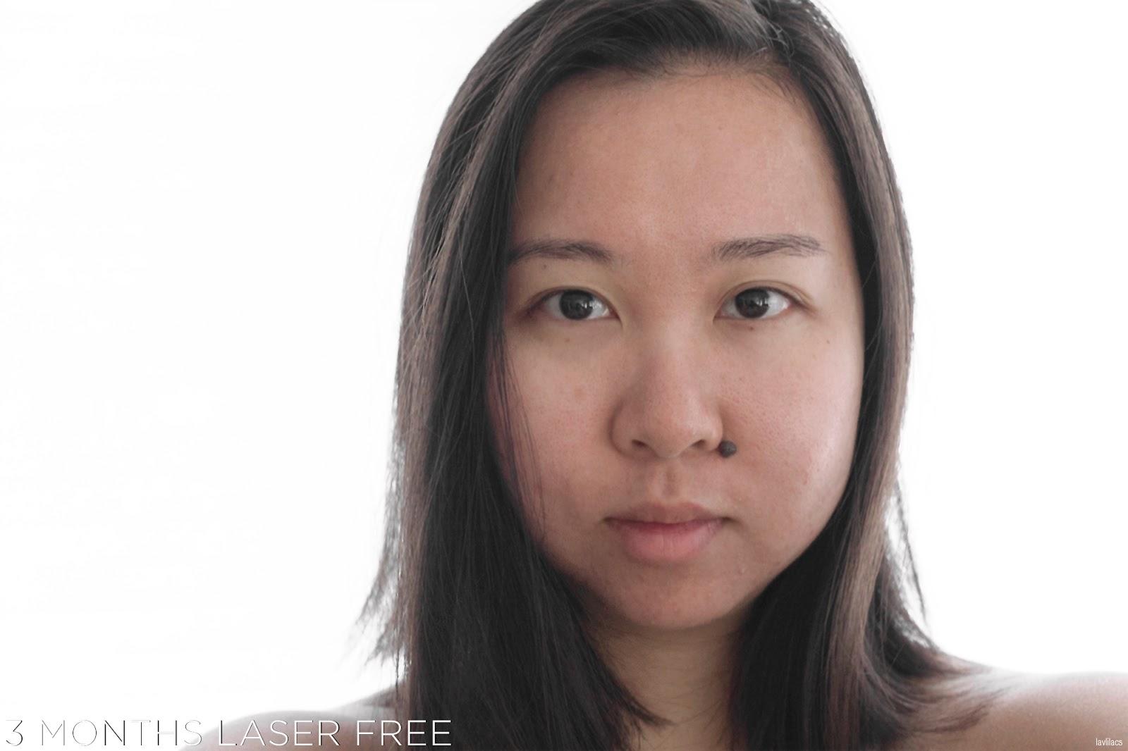 tria Hair Removal Laser Facial Hair 3 Months Laser Free