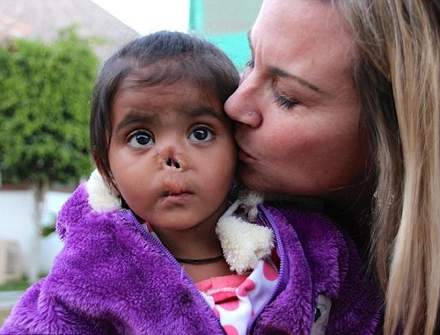 Женщина удочерила девочку, найденную на свалке. Нос малышки съели насекомые, но любовь и врачи сотворили чудо