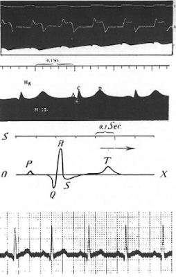 Rekaman EKG seperti yang dilakukan oleh Einthoven