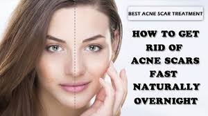 How to get rid of spots on face overnight