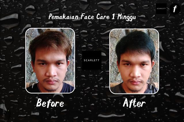 Before-Atfer Pemakaian Face Care Scarlett